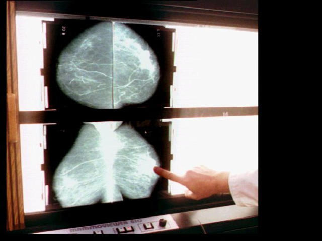 Doctors say women who have undergone radiation for breast cancer should avoid x-rays and other forms of radiation.